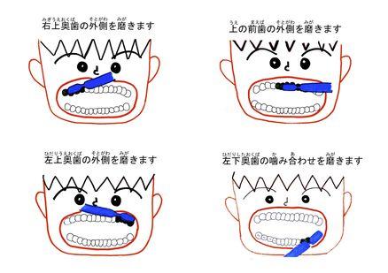 d31_furitsu_hamigaki_q