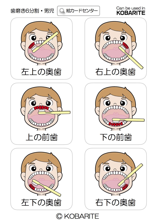 歯磨き指導 絵カード 自閉症 コバリテ